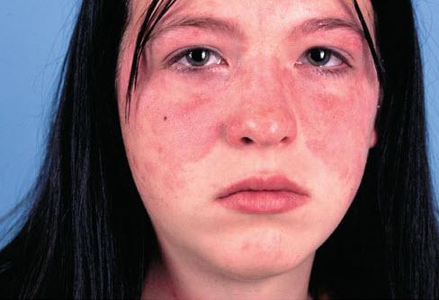 درمان ریزش مو در بیماری لوپوس