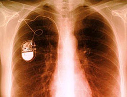 [تصویر:  pacemaker-life.jpg]