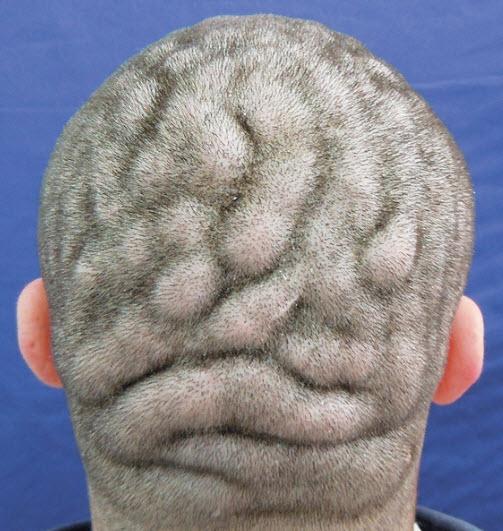 پوست سر شبیه مغز