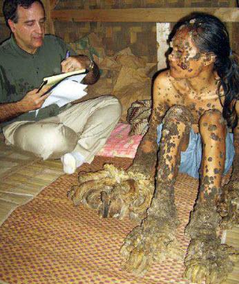 مرد درختی اندونزی