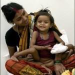عمل جراحی موفقیتآمیز دختر 8 اندامی هندی