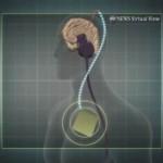 «بانجو»نوازی در هنگام عمل جراحی مغز!