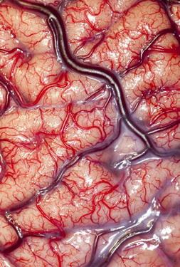 brain-1206252HEADER