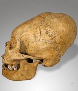 skull-deformation