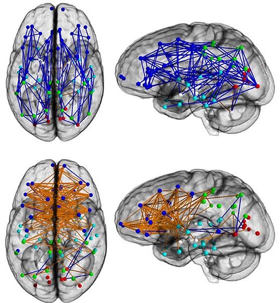 سیمکشی مغز
