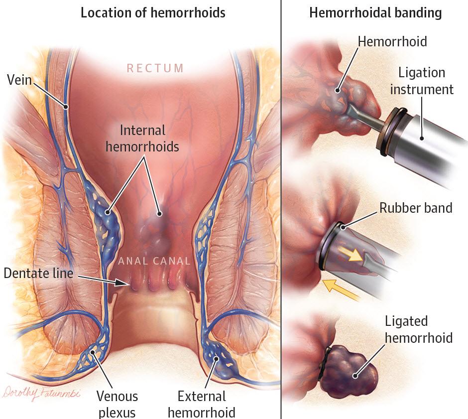 درمان بواسیر