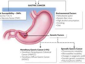 سرطان معده