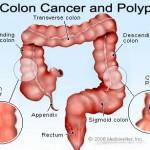 سرطان کولورکتال (روده بزرگ)