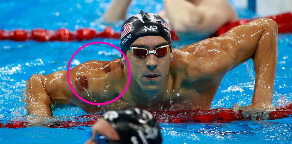 چرا مایکل فلپس -قهرمان نامدار شنای آمریکا- از شیوه سنتی بادکش گذاشتن استفاده میکند؟