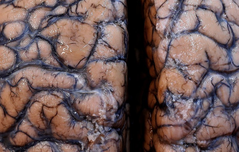 يک بيمارستان روانپزشکي بلژيک، محل نگهداري بزرگترين مجموعه مغز انسان شد