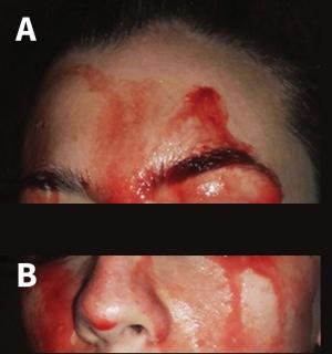 یک مشکل پزشکی عجیب: زن ۲۱ ساله  ای که خون عرق می کند!