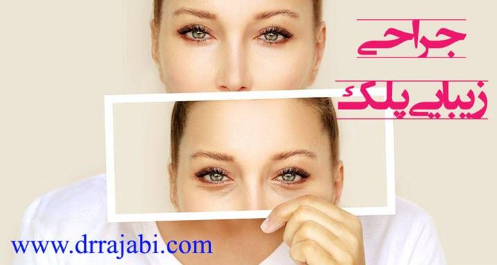جراحی زیبایی پلک و جراحی افتادگی پلک