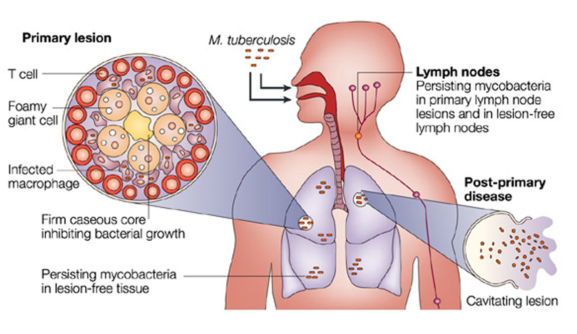 Mycobacterium Tuberculosis Infection