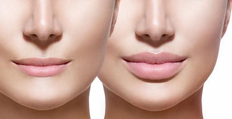 چگونه به روش های طبیعی صورت خود را چاق کنیم؟