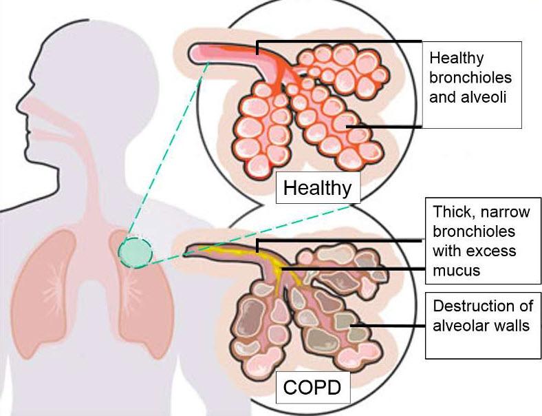 بیماریهای انسدادی مزمن ریه