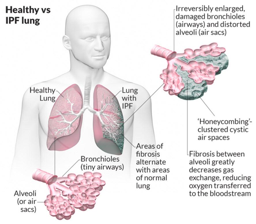 فیبروز ایدیوپاتیک ریه