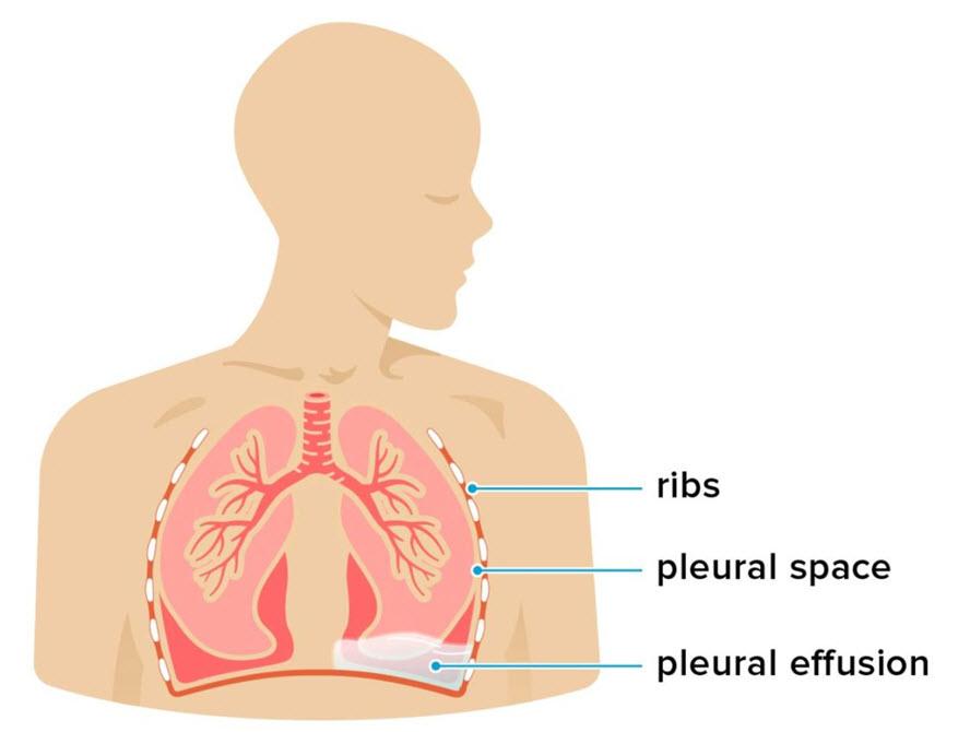 افیوژن پلور