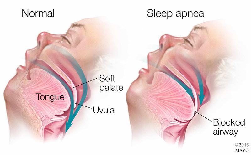 قطع تنفس در خواب یا آپنه در خواب