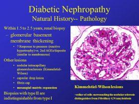 نفروپاتی دیابتی diabetic nephropathy