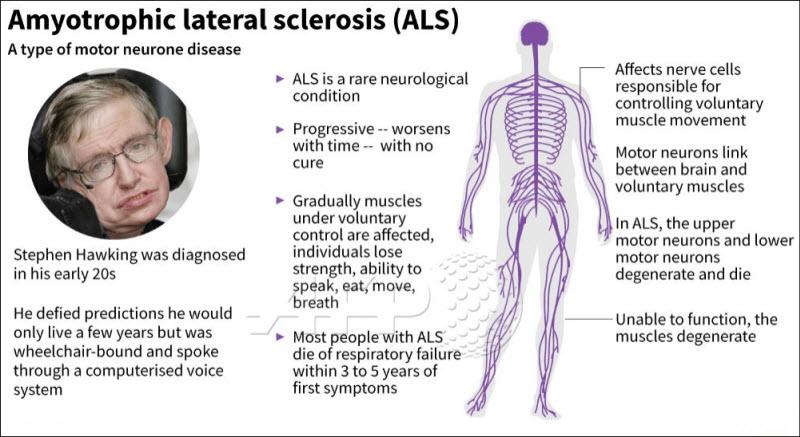بیماری ALS یا آمیوتروفیک لترال اسکلروزیس