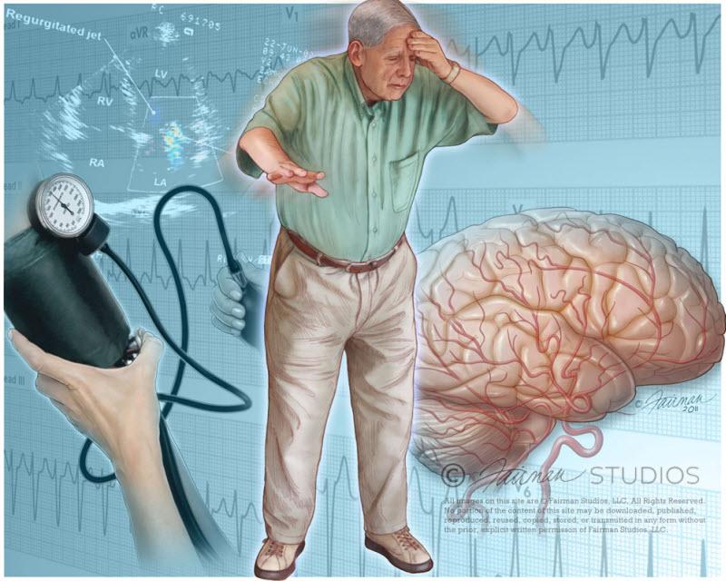 سنکوپ به چه معنی است؟ چه علتهایی دارد و راههای تشخیص و درمان کدامند؟
