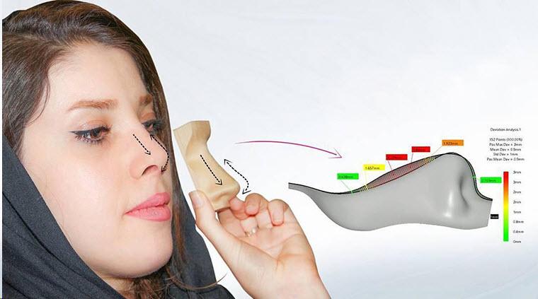 تکنولوژی اسکن سه بعدی در عمل بینی