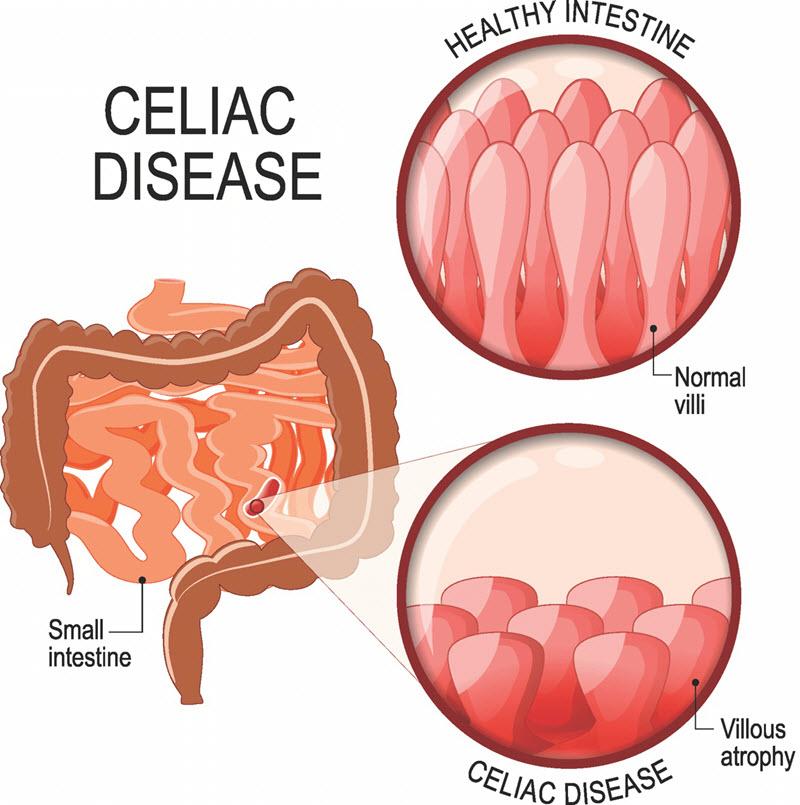 بیماری سلیاک