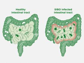 سندرم رشد بیش از حد باکتریها در روده