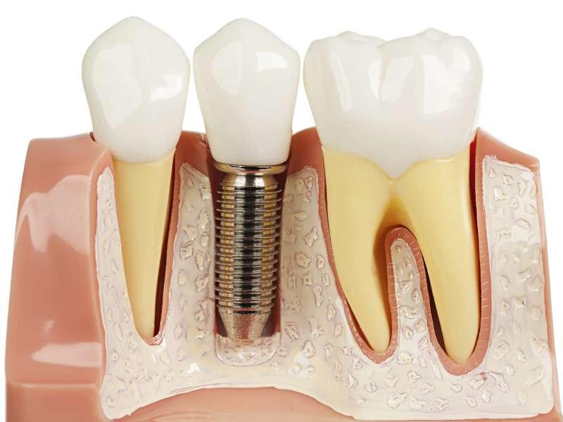 ایمپلنت دندان چیست؟ چطور انجام میشود؟ هزینه و دانستنیهای مفید